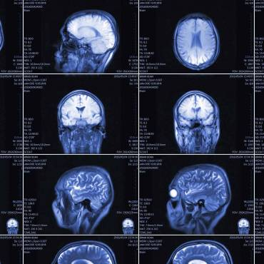What do you mean I have a brain tumor?