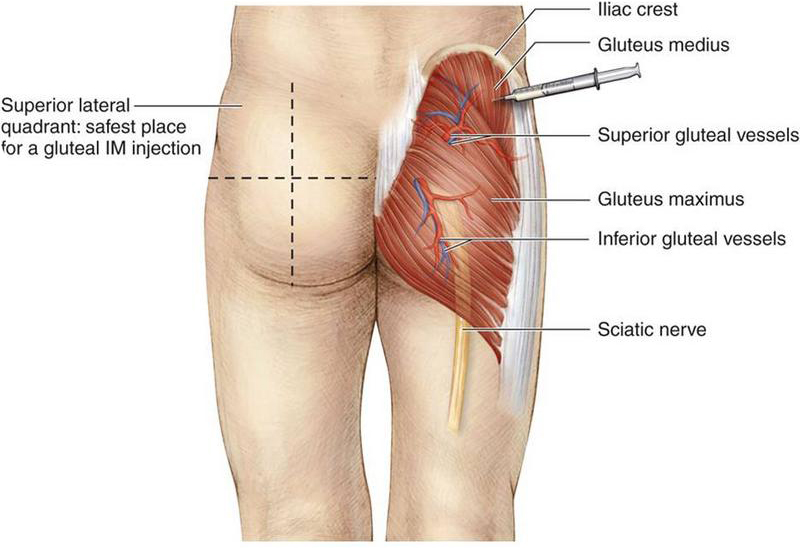How to inject Testosterone (TRT) into your glutes - Dosage